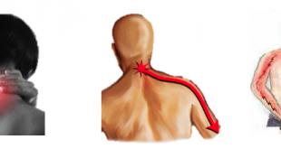 Cervicobrachialgia