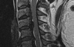 Ossificazione del ligamento longitudinale posteriore