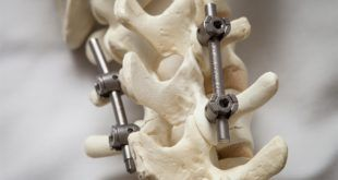 Artrodesi postero laterale