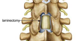 Laminectomia