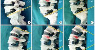 ALIF - Artrodesi intersomatica anteriore