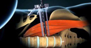 XLIF - Artrodesi intersomatica laterale